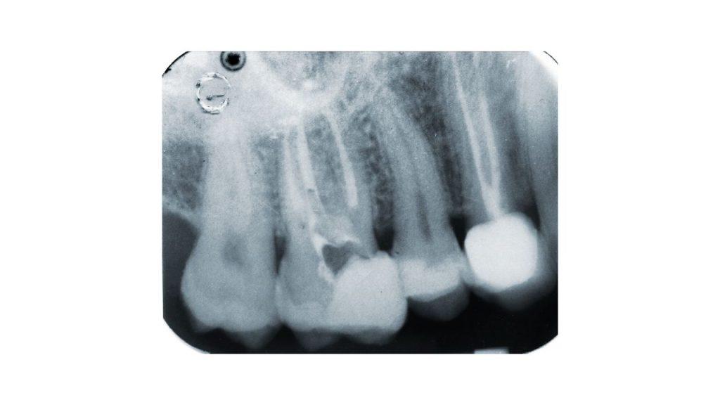 Dent dévitalisée quand cela devient un problème