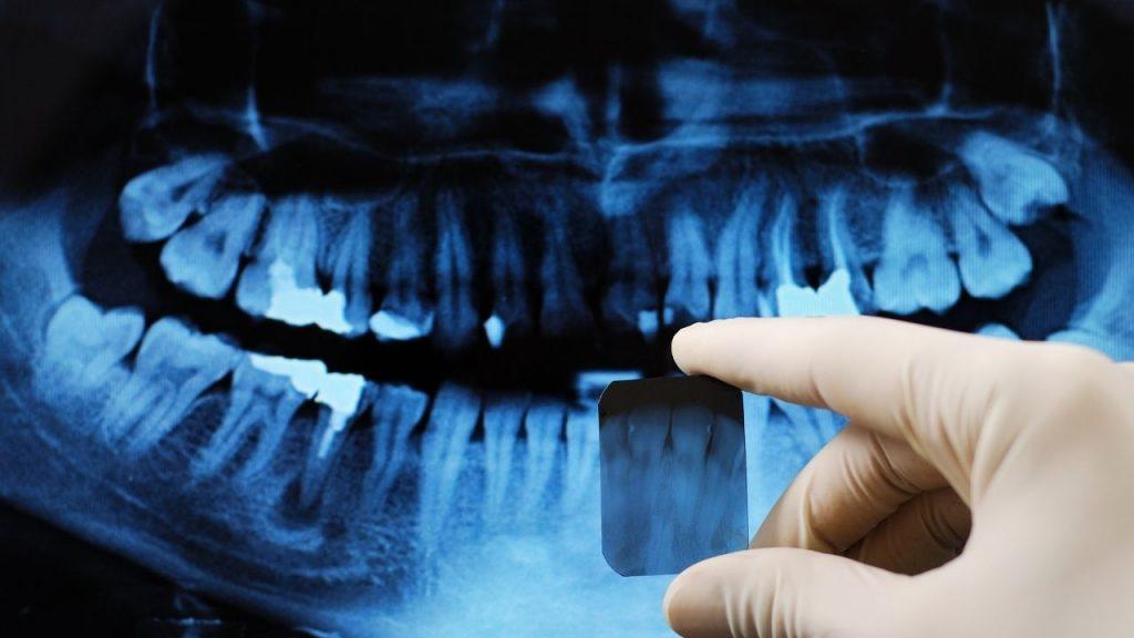 Les radiographies dentaires sont-elles dangereuses ?