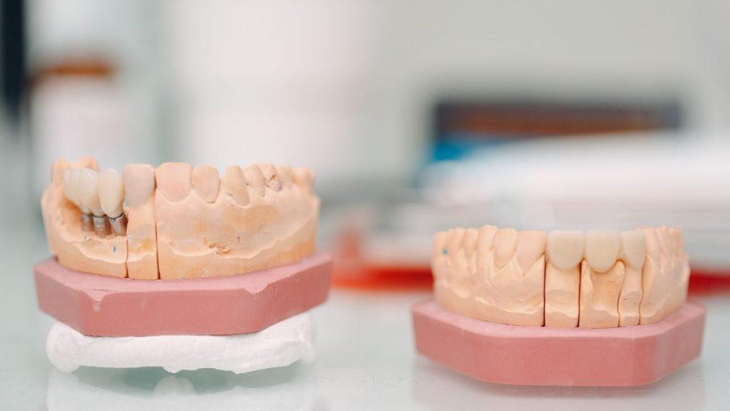 Pourquoi faire des implants dentaires ?
