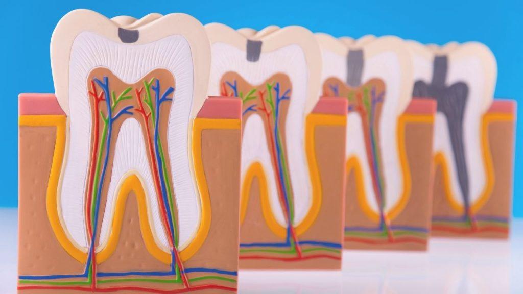 Comment garder l'émail de vos dents fort ?